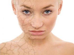 Làn da và sức khỏe bị ảnh hưởng bởi độc tố